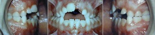 bmh orthodontie fonctionnelle chez l_enfant 1