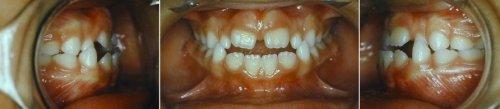 bmh orthodontie fonctionnelle chez l_enfant 2